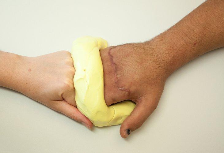handtherapie-knete_ergotherapie-holzkirchen-unterhaching