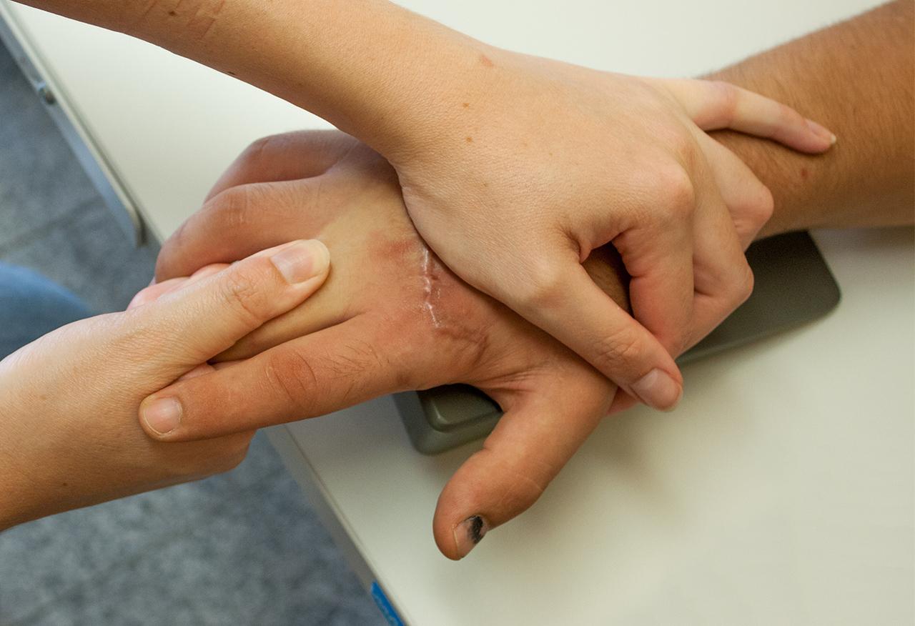 Handtherapie - Ergotherapie Felzmann